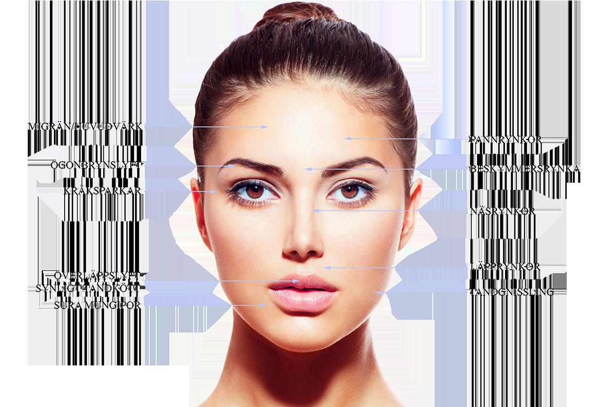 botox panna huvudvärk